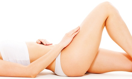One or Three Tripolar Body-Contouring Sessions at Rose Face & Body Contour (Up to 75% Off)