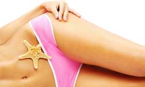 Elements Laser Spa: Six Laser Hair-Removal Treatments on a Small or Medium Area at Elements Laser Spa (Up to 69% Off)