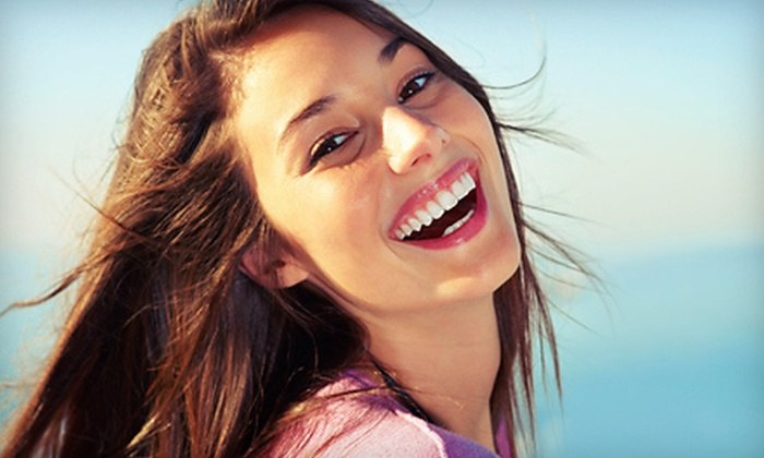Shore Smiles - Mt. Pleasant: $99 for a 60-Minute DaVinci In-Office Teeth-Whitening Session at Shore Smiles ($317 Value)