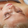 Up to 48% Off Acupuncture