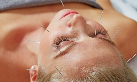 One or Three 60-Minute Acupuncture Sessions at with Loren at 4 Branches Community Acupuncture (Up to 48% Off)