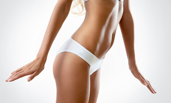 Madison Spa - Midtown East: Two or Four VelaShapeII Cellulite-Reduction Treatments with Sauna Visits at Madison Spa (80% Off)