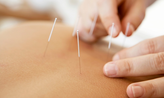 Dr. TCM Integrated Health Centre - Sunset: One or Three 60-Minute Acupuncture Sessions at Dr. TCM Integrated Health Centre (Up to 63% Off)