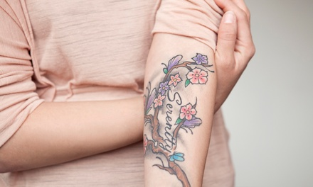 Four Laser Tattoo-Removal Treatments on a Small, Medium, or Large Area at White Pearl Medical Spa (Up to 66% Off)