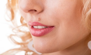Ma'am Exams: One, Three, or Five Skin Tag, Mole, or Wart Removals at Ma'am Exams (Up to 73% Off)
