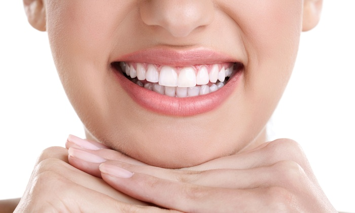 Infinity Dental Associates with Dr. Michelle Segal - Crafts: $99 for In-Office Teeth-Whitening at Infinity Dental Associates with Dr. Michelle Segal ($600 Value)