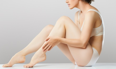 $135 for Two Cosmetic Spider-Vein Treatments at The Sheen Vein Institute ($700 Value)