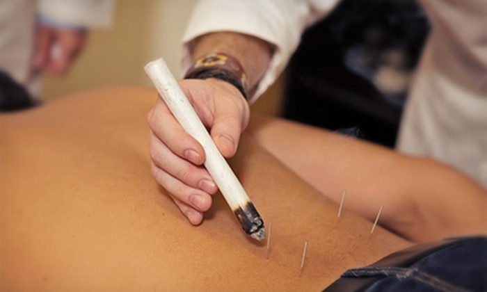 American College of Traditional Chinese Medicine - Potrero: $27 for an Acupuncture and Herbal Treatment at the American College of Traditional Chinese Medicine (Up to $63 Value)