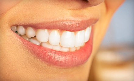 $1,999 for Invisalign Express & Whitening Package with Dental Exam and X-rays at Coral Ridge Smile ($4,500 Total Value)