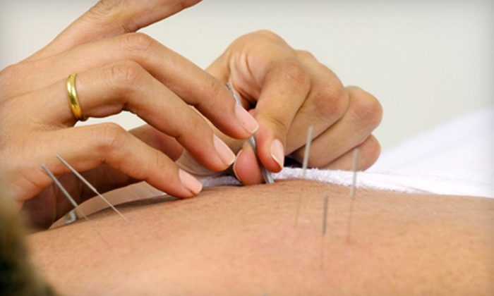 Way of Wellness - San Jose: One or Three Acupuncture Treatments with Consultation at Way of Wellness (Up to 88% Off)