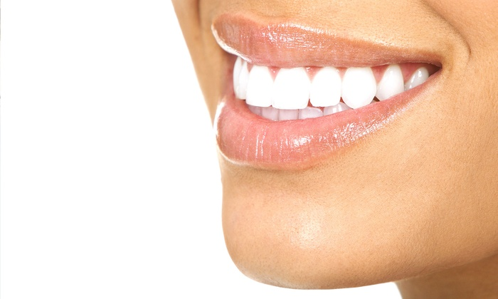 Canyon Dental & Orthodontics - Canyon Dental & Orthodontics: $2,599 for an Invisalign Treatment and Take-Home Whitening Kit at  Canyon Dental & Orthodontics (Up to $7,300 Value)
