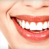 Up to 89% Off Dental Care in Scottsdale