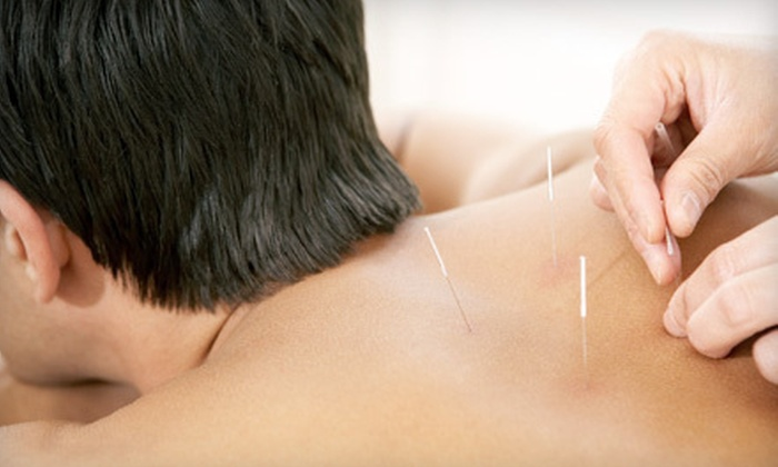 Dow Chiropractic and Acupuncture - Madison: One, Three, or Five Acupuncture Sessions or a One-Hour Massage at Dow Chiropractic and Acupuncture (Up to 61% Off)