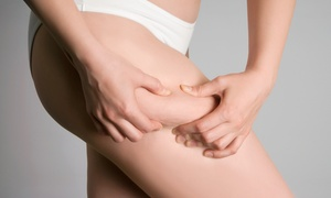 Intelligent Lipo of Orland Park: Two i-Lipo or i-Lipo Ultra Treatments at Intelligent Lipo of Orland Park (Up to 60% Off)