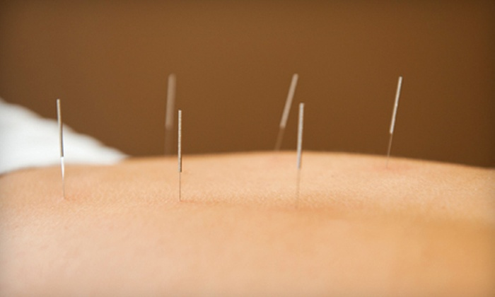 AcuHealing Classical Acupuncture - Cascade-Fairwood: One, Two, or Four Acupuncture Treatments with an Initial Evaluation at AcuHealing Classical Acupuncture (Up to 87% Off)