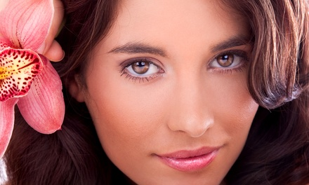 One, Two or Three Micro-Diamond Dermabrasion Treatments at K-Yong Skin Care (Up to 55% Off)