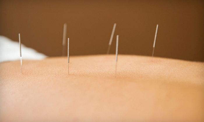 AcuBalance Wellness - Irvine Business Complex: One or Three Acupuncture Treatments with Consultation at AcuBalance Wellness (Up to 75% Off)