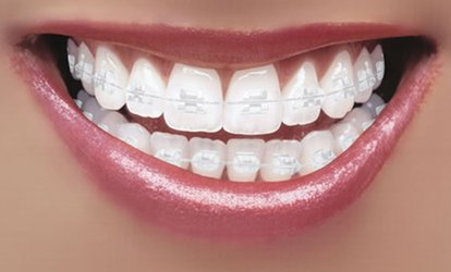 image for Clear Braces for One or Two Arches at Dental Care London (Up to 71% Off)