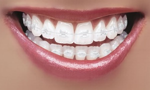 Dental Care London: Clear Braces for One or Two Arches at Dental Care London (Up to 71% Off)