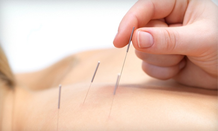 Stone Avenue Acupuncture Center - Viola Street Area: One or Two Acupuncture Treatments and an Initial Consultation at Stone Avenue Acupuncture Center (Up to 64% Off)