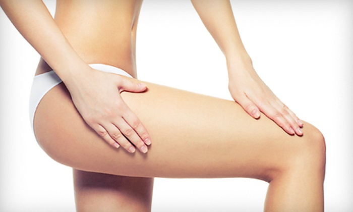 Hometown Laser Clinic & Spa - City Centre: $159 for Three Laser Body-Shaping or Cellulite-Reducing Treatments at Hometown Laser Clinic & Spa (Up to $735 Value)