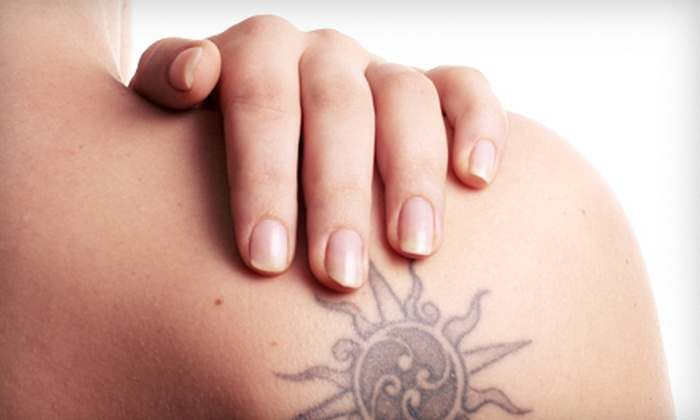 ON2U Body Piercing and Tattoos - Riversdale: Three Sessions of Laser Tattoo Removal for a 3- or 6-Square-Inch Area at ON2U Body Piercing and Tattoos (Up to 70% Off)