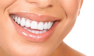 Las-Hair Clinique: 3, 6 or 9 Professional Teeth Whitening Treatments at Las-Hair Clinic (Up to 91% Off)