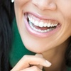 Up to 88% Off Dental Exam Packages