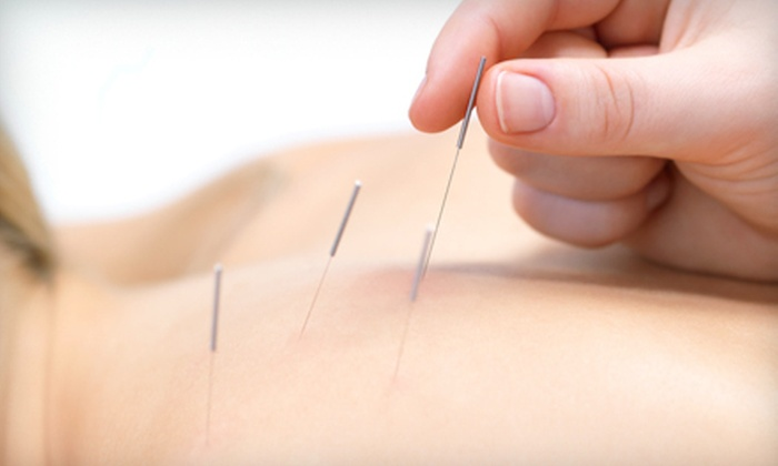 Canadian MediPain Centre - Burnaby: One or Three Acupuncture Treatments at Canadian MediPain Centre (Up to 62% Off)