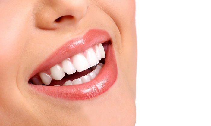 Franklin Dental Center - Oakland: Teeth-Whitening Treatment with Optional Checkup, X-rays, and Cleaning at Franklin Dental Center (83% Off)