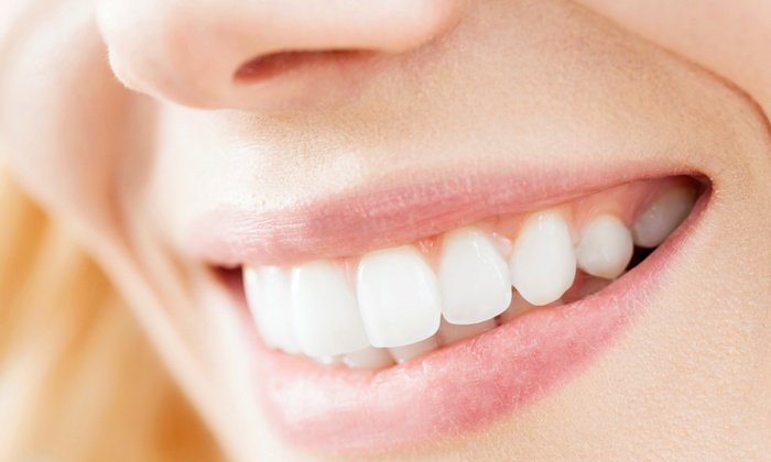 Smile Sciences: $29 for a Teeth-Whitening Kit at Smile Sciences ($299 Value)