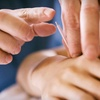 Up to 87% Off Acupuncture