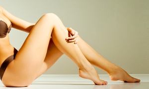 Chiara Nails (Piazza Umberto ): 10 pressoterapie abbinate a fanghi. Valido in 3 sedi (sconto 85%)