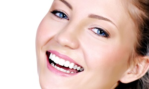 Comfort Dental: Same-Day-Crown Package, or Four Veneers or Crowns with Take-Home Whitening Kit at Comfort Dental (Up to 57% Off)