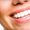 Up to 96% Off Dental Services in Chula Vista