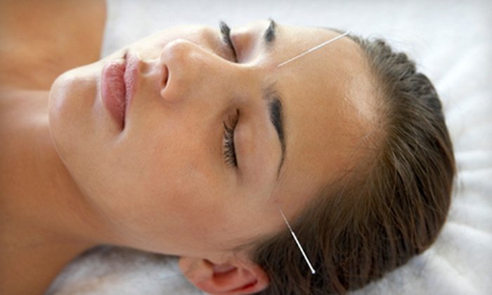 North East Acupuncture Center - Yarmouth: One, Three, or Six Acupuncture or Facial-Rejuvenation Sessions at North East Acupuncture Center (Up to 75% Off)