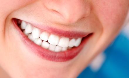 Zoom! Whitening Packages with Teeth Cleaning at City Dental Centers (Up to 87% Off). Three Options Available.