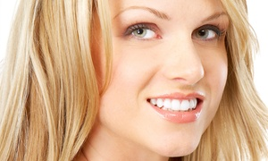 Hollywood Smile: CC$129 for an LED Teeth-Whitening Package with Exam, Fluoride Treatment, Take-Home Kit at Hollywood Smile (CC$574 Value)