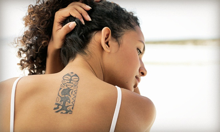 DFW Tattoo Removal - Colleyville: Three Tattoo Removal or Sunspot Removal Sessions at DFW Tattoo Removal (Up to 79% Off)