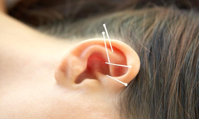 C3 Acupuncture - Samlarc: 60-Minute Acupuncture Treatment and Consultation from C3 Acupuncture (65% Off)