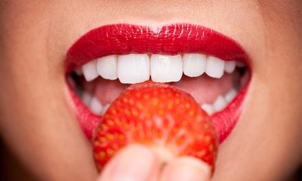 One-Hour Zoom Teeth Whitening with Optional Custom Trays and Take-Home Whitening Gel at Boutique Spa (Up to 83% Off)