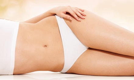 $199 for Four Ultrasonic Liposuction Treatments at Renewal Health Club ($796 Value)