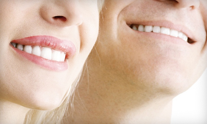 GM Dental Arts - Core-Columbia: Two, Four, or Six Porcelain Veneers at GM Dental Arts (Up to 69% Off)