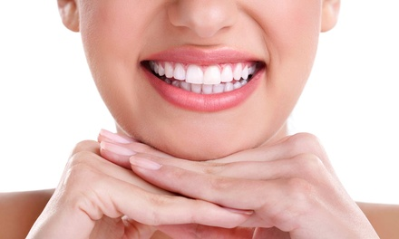Zoom! Whitening Treatment and Teeth Cleaning with Optional Touchup and After-Care Kit at Glo My Teeth (86% Off)