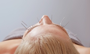 Advanced Physician Acupuncture: One or Two Nonsurgical Face-Lifts at Advanced Physician Acupuncture (Up to 64% Off)