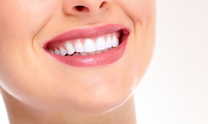 Sparkles R Us - Sparkles R Us: 30-Minute Teeth Whitening Treatment - One ($35), or Three Sessions ($89) at Sparkles R Us, Sinagra (Up to $225 Value)