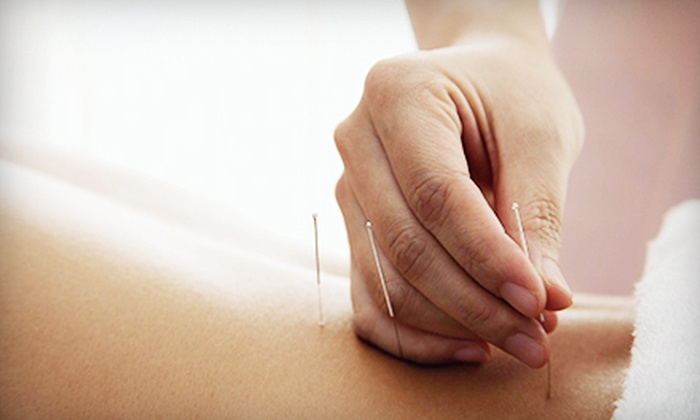 John Kotsch Acupuncture - Gainesville: One or Three Acupuncture Treatments at John Kotsch Acupuncture (Up to 69% Off)
