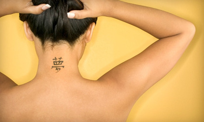 Vanish Laser Tattoo Removal & Skin Aesthetics - Hillcrest: Three Laser Tattoo-Removal Treatments at Vanish Laser Tattoo Removal & Skin Aesthetics (67% Off). Four Options.