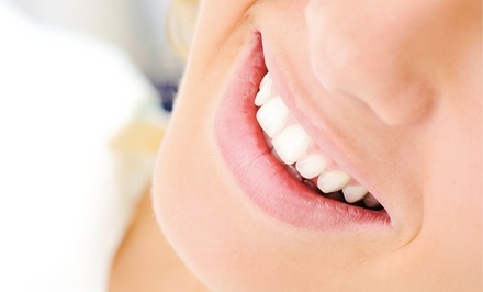 $59 for Laser Teeth Whitening and Touch-Up Sessions at Smile High Dental and Facial Spa ($295 Value)