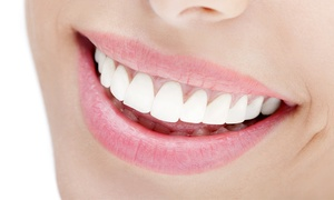 Dentally Exclusive: Six Month Smiles© Clear Fixed Braces On Single (£749) or Both (£1099) Arches at Euro Dental Care (Up to 63% Off)
